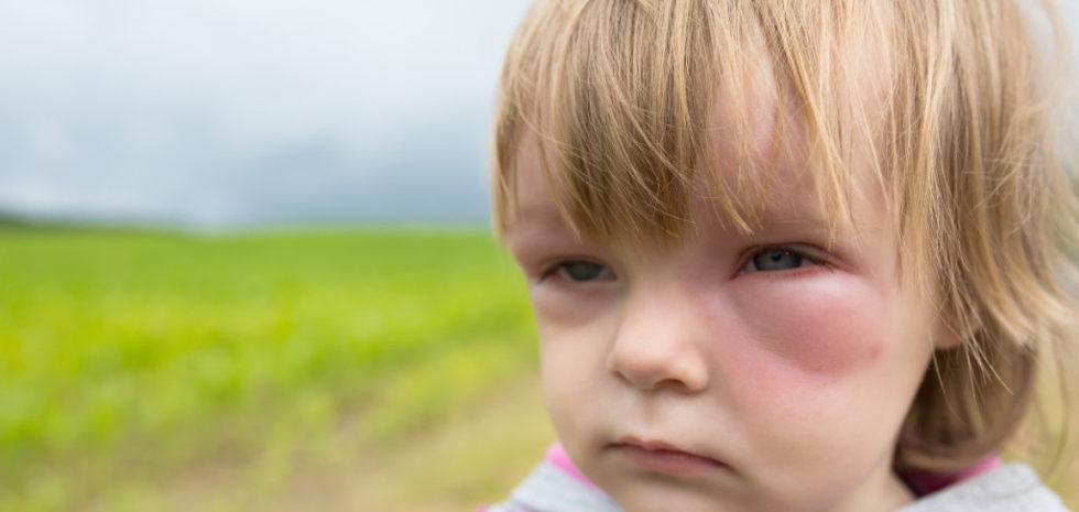alergii oculare
