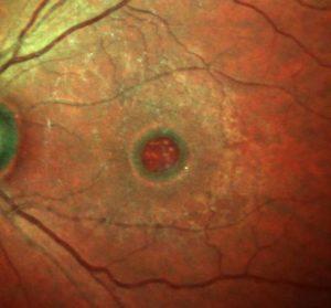 Gaura maculara