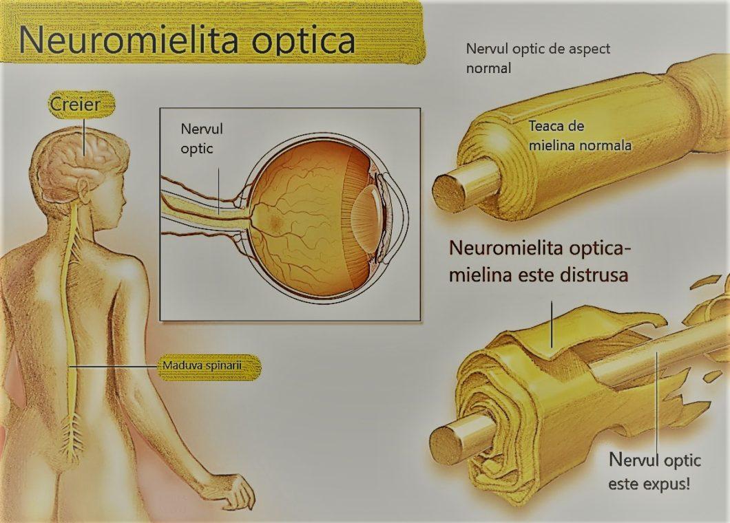 Boli neurologice cu simptome oculare